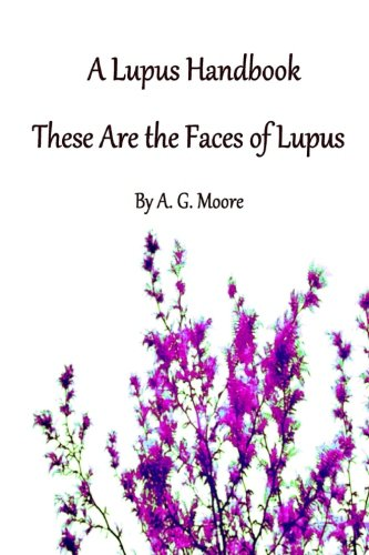 A Lupus Handbook  These Are The Faces Of Lupus