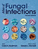 Atlas of Fungal Infections, Kaufmann Carol (EDT), 1573402567