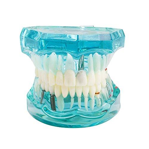 vinmax Dental Teeth Model,Transparent Dental Implant Disease Teeth Model Dentist Standard Pathological Removable Tooth Teaching Tools for Student (Pathological Teeth -
