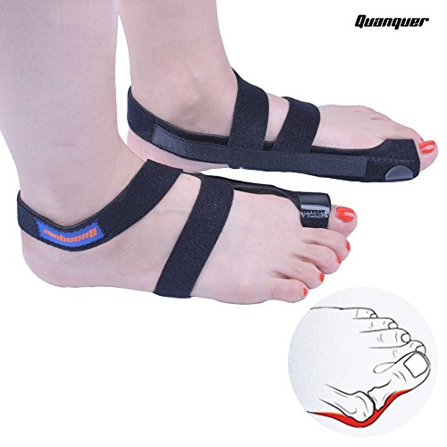 Quanquer Bunion Corrector 2pcs Adjustable Bunion Splints and Big Toe Straighteners Separators Night Time Hallux Valgus Splints for Hammer Toe Pain Relief (Black) by Quanquer
