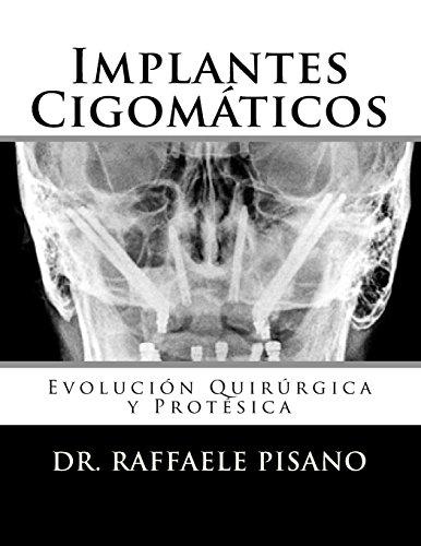 Implantes Cigomaticos: Evolucion Quirurgica y Protesica  [Pisano, Dr. Raffaele] (Tapa Blanda)