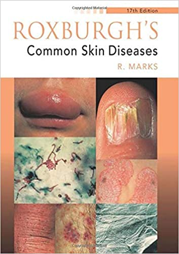 Roxburgh's Common Skin Diseases, 17Ed (Medicine