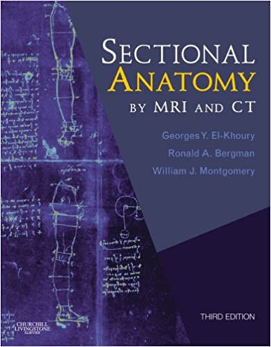Sectional Anatomy by MRI and CT With Website: 9780443066665 ...