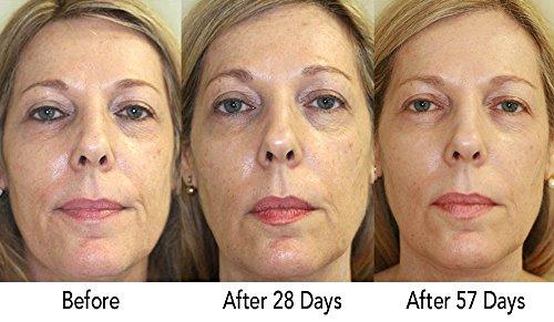 51kIZ5lujtL - RejuveMD Growth Factor Anti-Aging Face Serum, 1.7 Fl Oz