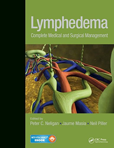 Lymphedema: Complete Medical and Surgical Management