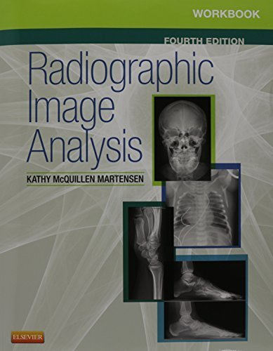 Radiographic Image Analysis - Text and Workbook Package, 4e 4th Edition by McQuillen Martensen MA RT(R), Kathy (2015) - Package Text 4e