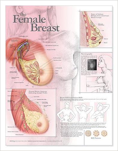 The Female Breast Anatomical Chart: 9780781782173: Medicine & Health ...