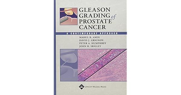 gleason 4 4 para la venta adenocarcinoma de próstata