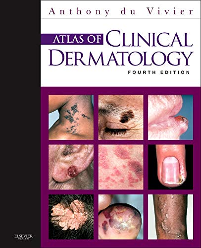 Atlas of Clinical Dermatology (du Vivier, Atlas of Clinical Dermatology)