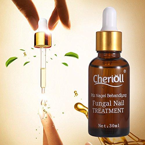 Nail Fungus Oil Nail Care,Nail Fungus Treatments,Fungus Stop,Nail Care Treatment of Anti-Fungal Solution,Effective against nail fungus 30ml by Cherioll (Image #1)