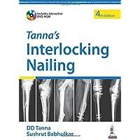 Tanna'S Interlocking Nailing With Dvd-Rom