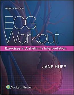 Ecg Workout Exercises In Arrhythmia Interpretation Jane Huff