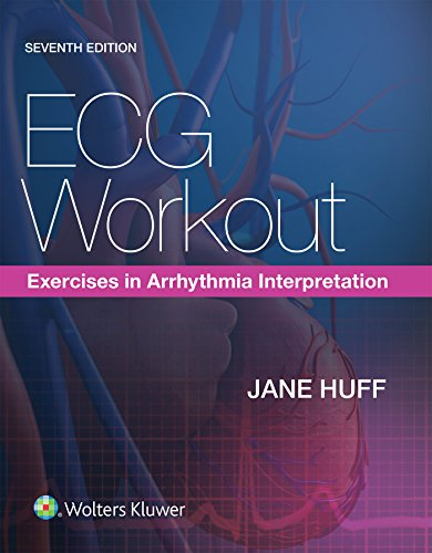 ECG Workout: Exercises in Arrhythmia Interpretation