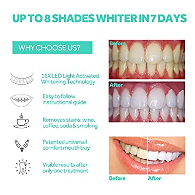 Teeth Whitening LED Light-PHOBE 16 LED Teeth Whitening Light Mouth Tray Teeth Whitening Enhancer Light Trays Connected with iPhone/Android/Type-C for Home Use