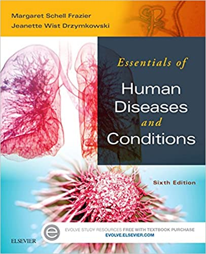 Amazon essentials of human diseases and conditions e book essentials of human diseases and conditions e book 6th edition kindle edition fandeluxe Gallery