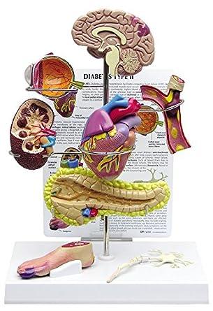 Diabetes Type 2 Anatomical Organ Model Set Brain Eye Heart