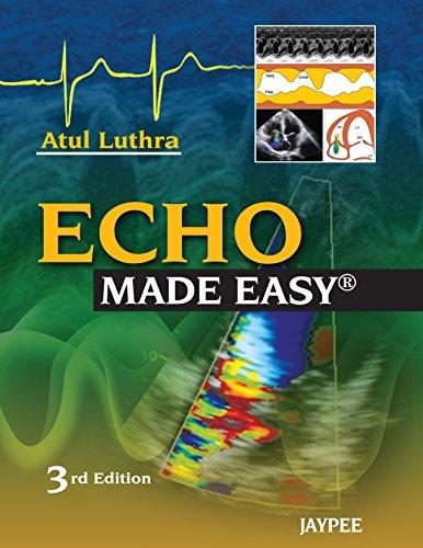 Echo Made Easy Pdf