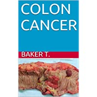 COLON CANCER (WHAT YOU NEED TO KNOW Book 6)
