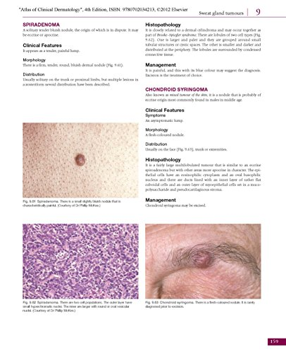 Atlas of Clinical Dermatology, 4e (du Vivier, Atlas of Clinical Dermatology)