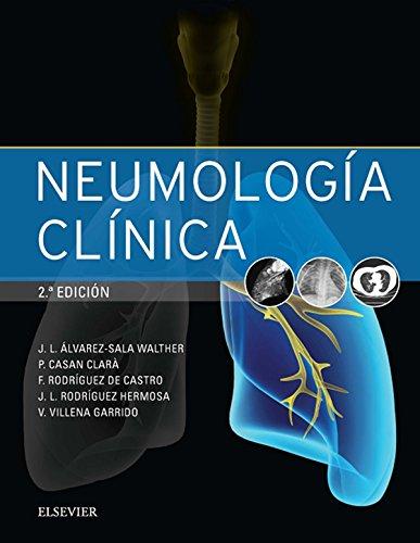 Neumología clínica (Spanish Edition)