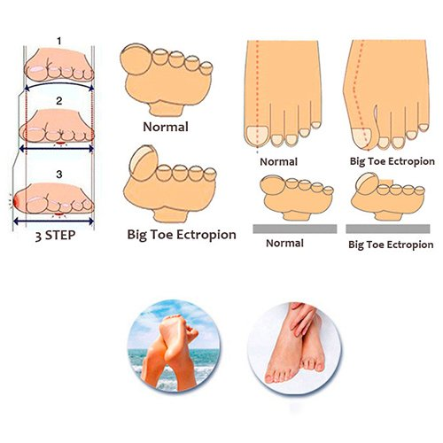 Bluelans® 1 Pair Silicone Gel Bunion Corrector Guards Pad Cushion Toe Protector Straightener Toe Separators by Bluelans (Image #5)