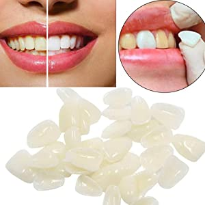 Teeth Veneers Ultra Thin Whitening Resin Anterior Upper Temporary C-rown Po-rcelain Oral Care 100 Pcs