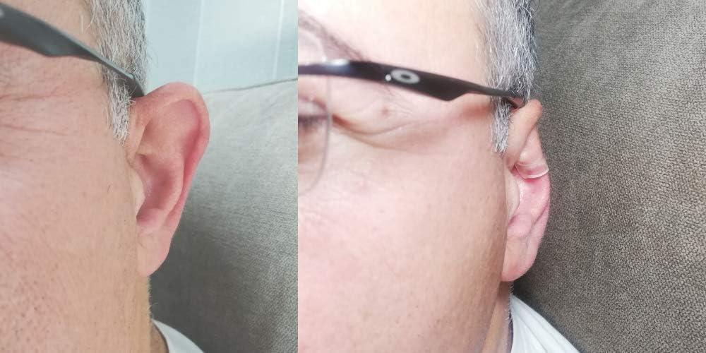 CORRECTOR DE OREJAS REUTILIZABLE BEAUTYEARS, es el único corrector de orejas reutilizable del mercado -DURA AÑOS - ¡No tendrás que comprar uno cada mes!