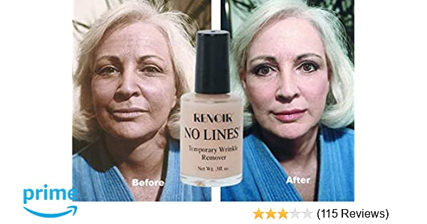 Amazon com: Temporary Wrinkle Remover - No Lines - for Forehead