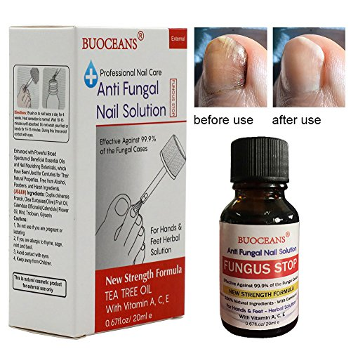 Fungus Stop, Fungal Nail Oil, Anti Fungus Nail Treatment, Effective against nail fungus, Anti fungal Nail Solution, Toenails & Fingernails Solution, Restores Toenail Fungus, Clear, 25 ml by BUOCEANS