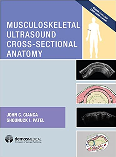 Musculoskeletal Ultrasound Cross-Sectional Anatomy: 9781620700624 ...