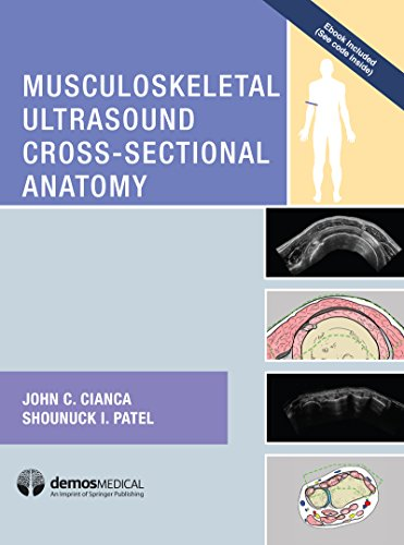 Musculoskeletal Ultrasound Cross-Sectional Anatomy - http://medicalbooks.filipinodoctors.org