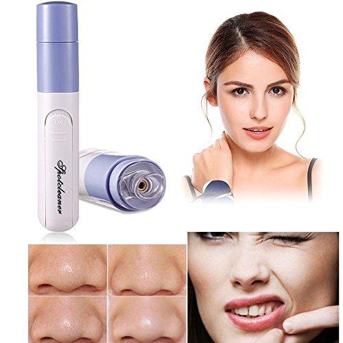 Electric Facial Pore Cleaner Blackhead Acne Suction Remover (Best Otc Blackhead Remover)