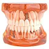 Teeth Model Orange Color Dental Disease Removable Study Teaching 3D Kit