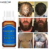 Facial Hair Development - Hair Growth Liquid,20ml Hair Growth Liquid Spray Extra Strength of Hair Anti Hair loss Essence