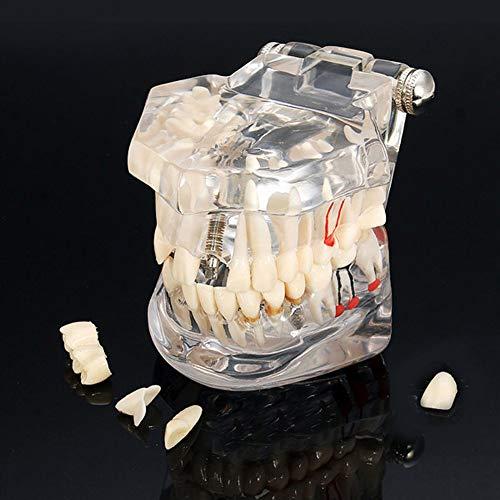 [해외]【 치과 치아 모델 】-치과 임 플 란 트 질환 치아 모델 치과 의사 표준 병리학 이동식 치아 교육 도구 / 【Dental Teeth Model】-Dental Implant Disease Teeth Model Dentist Standard Pathological Removable Tooth Teaching Tools