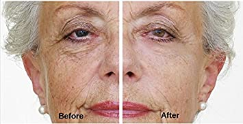 Instant lift the face