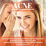Acne: The Ultimate Guide on How to Both Prevent and Get Rid of Your Blemishes to Regain Your Clear Skin | Stan Kozak