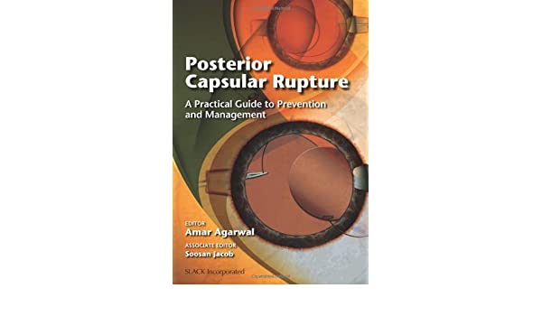 Posterior Capsular Rupture: A Practical Guide to Prevention and Management: Amazon.es: Amar Agarwal: Libros en idiomas extranjeros