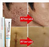 Best Scar Treatment Creams - Nuobisong - face treatment care acne scar removal Review