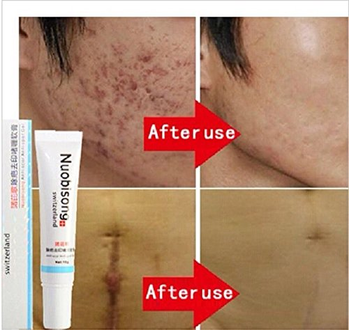Stretch Marks Corrector - Best Scar Removal Cream Treatment, Acne Scar Gel, Stretch Marks, Surgery Scars. 15ml (New to Amazon) Pigment Reducing Spot Corrector, Lighten Scars in a Few Weeks.
