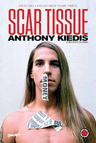 Download anthony kiedis ebook