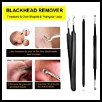 Blackhead Remover, ElleSye 6-PCS Pimple Comedone Extractor, Blackhead Removal tool, Whitehead Blemish Acne Zit Remover Tweezer Kit for Risk Free Nose with Antibacterial Coating Handle