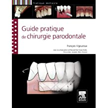 Guide pratique de chirurgie parodontale (French Edition)