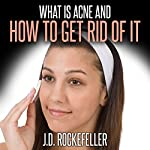 What Is Acne and How to Get Rid of It | J.D. Rockefeller