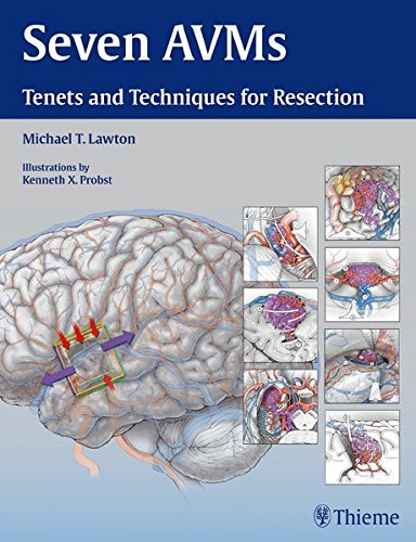 Seven AVMs: Tenets And Techniques For Resection