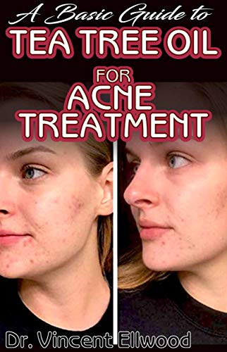 A Basic Guide To Tea Tree Oil for Acne Treatment: All you need to know about tea tree oil and how its the most potent natural treatment for clearing acne!