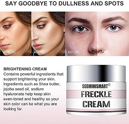 Crema Blanqueadora, Anti Manchas Cara, Whitening Cream, Anti Manchas regeneradora y aclarante,Tono de piel desigual, puntos oscuros