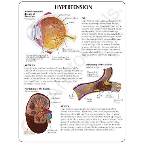 Hypertension Organ Model Set by Anatomical Chart Company (Image #6)