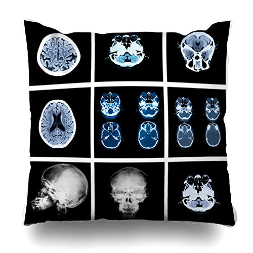 Ahawoso Throw Pillow Cover Square 18x18 Accident Anatomy Collage Many Xrays Very Good Ankle Science Arm Body Bone Broken Design Degeneration Zippered Cushion Case Home Decor ()