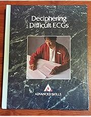 Deciphering Difficult Ecgs
